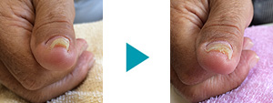 巻き爪改善症例69