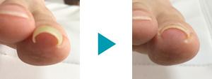 巻き爪改善症例74