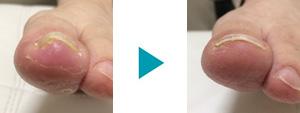 巻き爪改善症例87