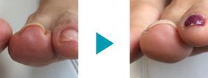 巻き爪改善症例81