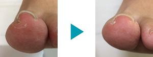 巻き爪改善症例83