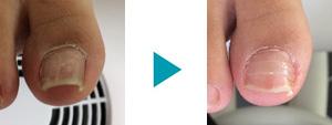 巻き爪改善症例84