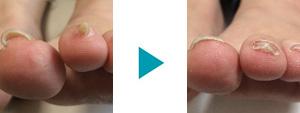 巻き爪改善症例93