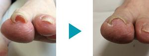 巻き爪改善症例95