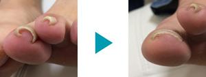 巻き爪改善症例100