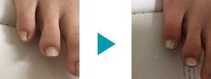 巻き爪改善症例98