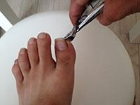 爪や爪周りのクリーニング