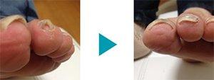 巻き爪改善症例5